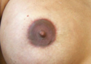 areola after treatment