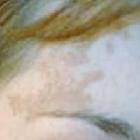 birthmark before treatment