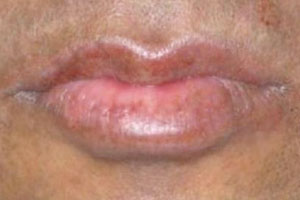 hypopigmentation after treatment