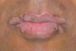 hypopigmentation before treatment