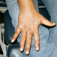 vitiligo after treatment